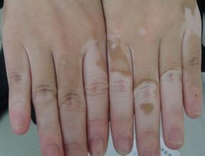 手部白手部白癜风症状-