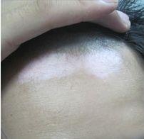 缺少什么元素会患毛囊型白癜风呢?